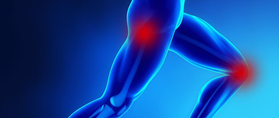 7 Consigli per salvare anca e ginocchio dall'artrosi ed evitare l'intervento di protesi