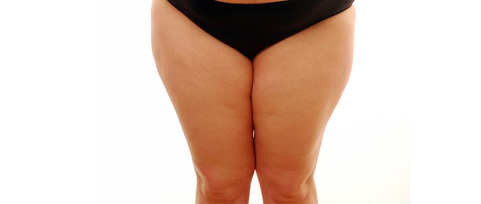 Protesi di ginocchio e obesità: i risultati non cambiano se si perde peso prima dell'intervento